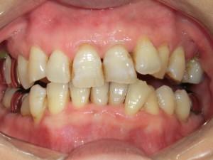 虫歯 セラミック