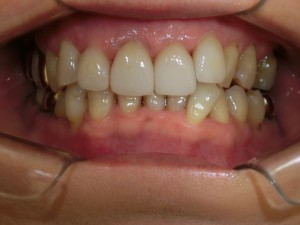 虫歯 ホワイトニング