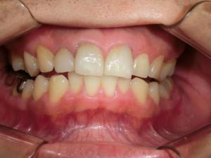 セラミック白い歯
